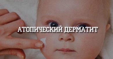 Атопический дерматит_2
