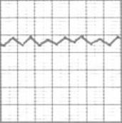 Выберите график пикфлоуметрии, соответствующий контролируемой бронхиальной астме