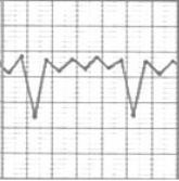 Выберите графики пикфлоуметрии, соответствующие неконтролируемой бронхиальной астме